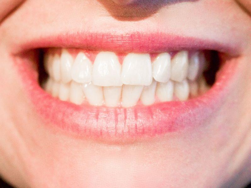 Skuteczne Wybielanie zębów Rybnik